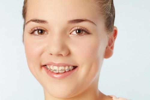Những loại niềng răng phổ biến tại TPHCM