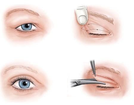 Cắt mí mắt giúp níu kéo tuổi thanh xuân